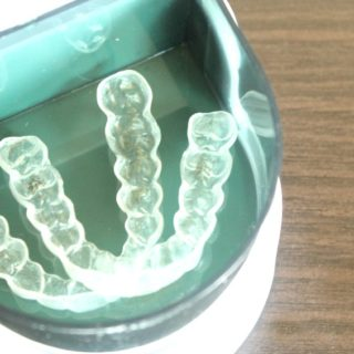 When Invisalign Treatment Ends, What's Next?