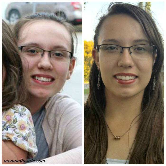 My Daughter's Thoughts on Wearing Invisalign Teen